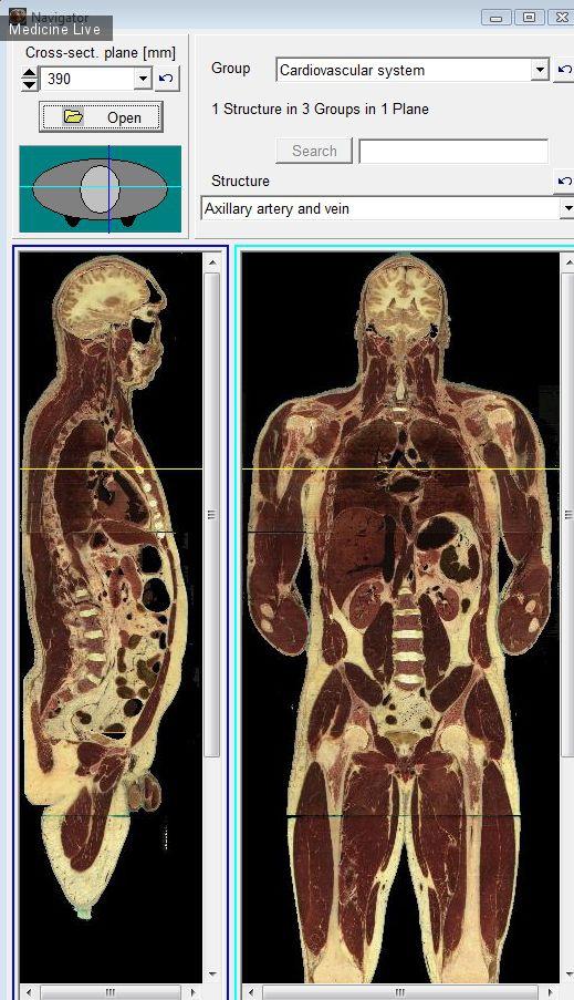 Медицинские программы: Поперечные срезы человека