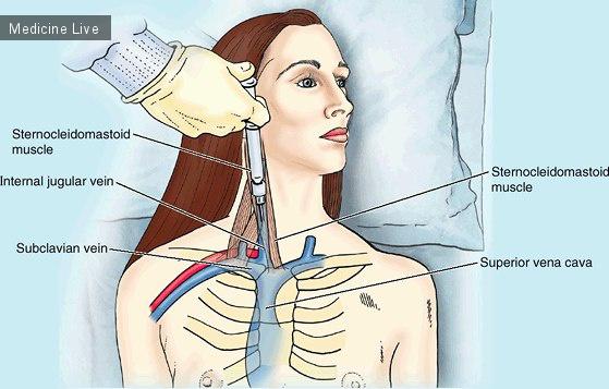 Анатомия: Пункция и катетеризация внутренней яремной вены.