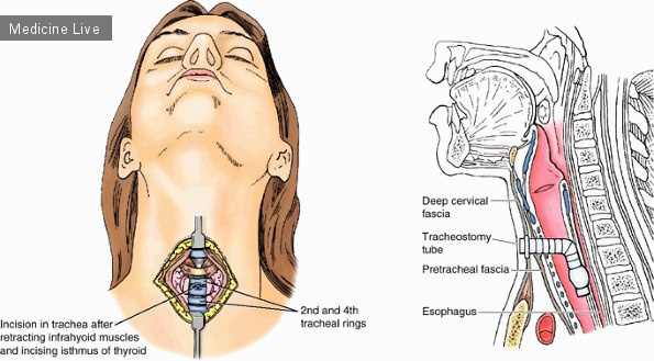 Хирургия: Трахеостомия