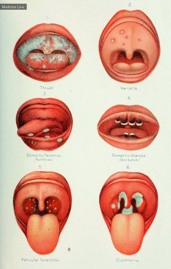 Сифилис полости рта