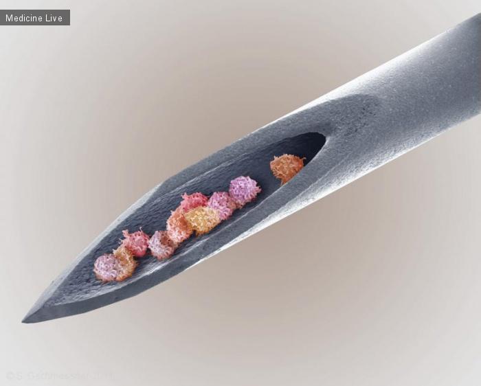 Красивые фотографии: Клетки красного костного мозга в игле шприца