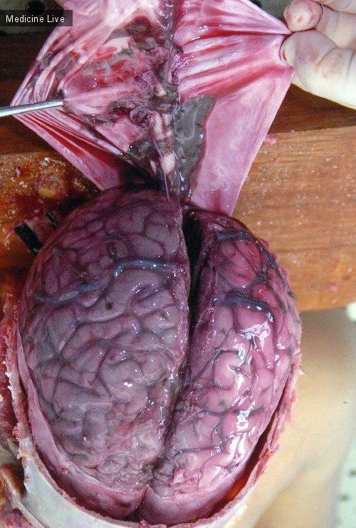 Интересный случай: Посттравматический менингит