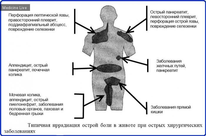 Хирургия: Иррадиация боли при хирургических заболеваниях