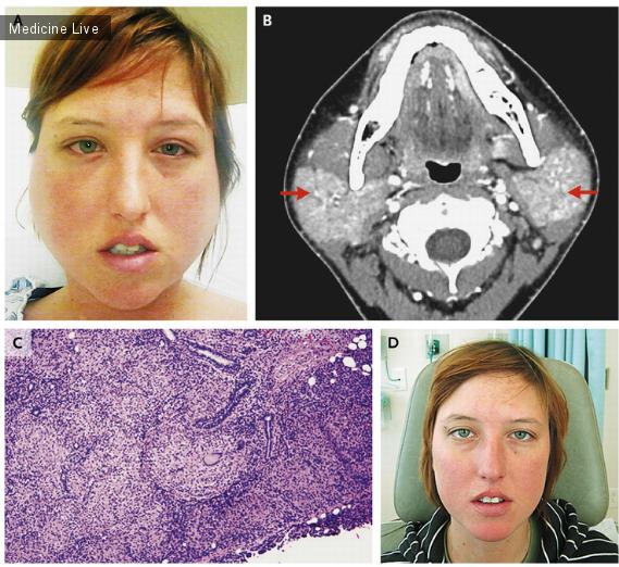 Интересный случай: Синдром Хеерфордта, или увеопаротитная лихорадка