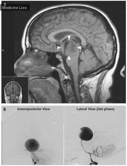 Интересный случай: Гигантская аневризма базальной артерии головного мозга