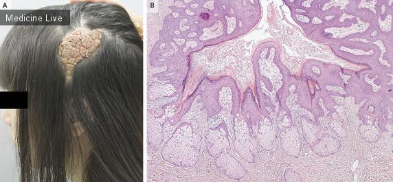 Интересный случай: Мозговидный невус сальных желез
