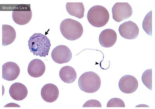 Интересный случай: Микогаметы p.vivax