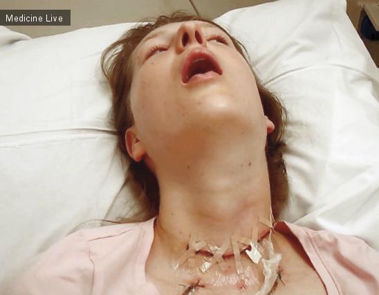 Интересный случай: Острая дистония после лечения Метоклопрамидом