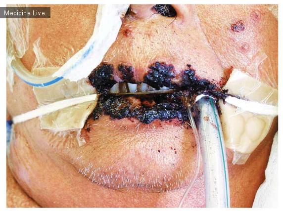 Интересный случай: Губной герпес