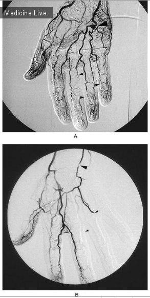 Интересный случай: Патологии сосудов руки, связанные с работой — Молоточный синдром возвышения мизинца