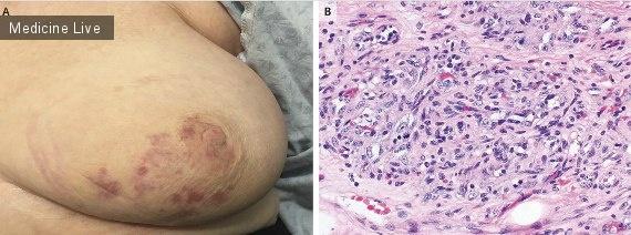 Интересный случай: Радиационно-индуцированная ангиосаркома после лечения рака молочной железы
