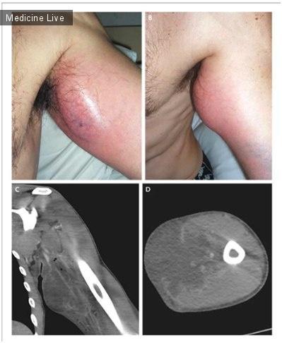 Интересный случай: Абцесс после инъекции стероидным препаратом