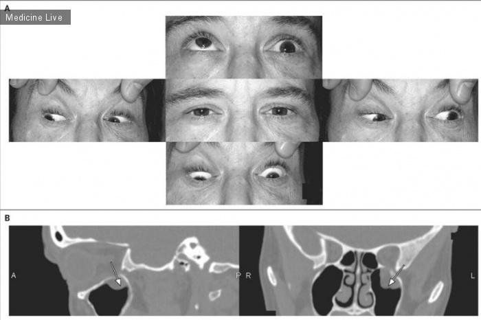 Интересный случай: Повреждение глазного яблока