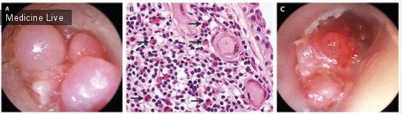 Интересный случай: Случай полипозного эозинофильного отита среднего уха