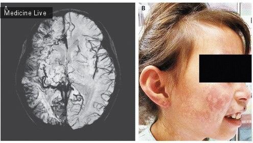 Интересный случай: Синдром Стерджа-Вебера
