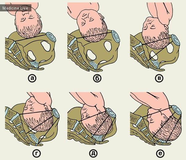 Как сделать чтобы головка опустилась