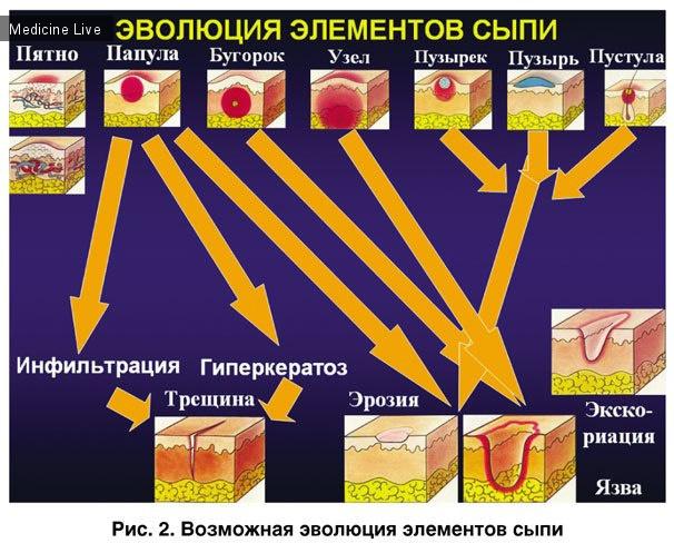 Дерматовенерология: Первичные морфологические элементы