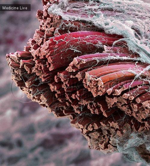 Красивые фотографии: Мышечное волокно под электронным микроскопом