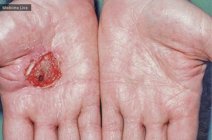 Интересный случай: Ладонная Плоскоклеточная Карцинома