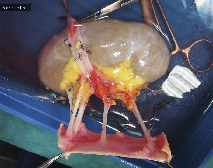 Интересный случай: Множественные Почечные Артерии