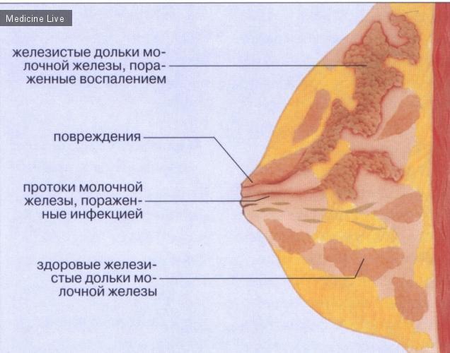 Острый мастит - воспаление молочной железы.05-09-2012 Мастит возникает чаще