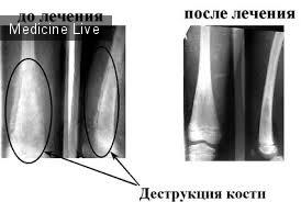 Хирургия - лекция 14 - Остеомиелит