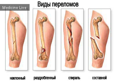 Хирургия: Переломы костей