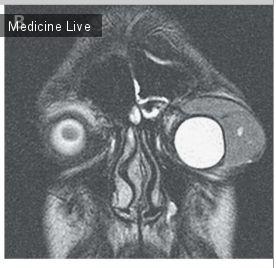Офтальмология: Интересный случай: Миелоидная саркома, проптоз глаза