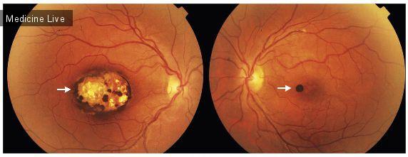 Офтальмология: Хориоретинальный токсоплазмоз