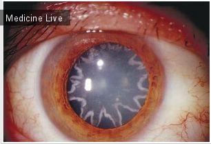 Офтальмология: Звездчатые помутнения хрусталика после удара током