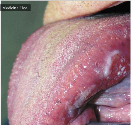 Онкология: Плоскоклеточный рак языка