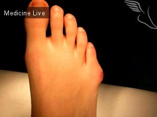 Интересный случай: Медицинские истории: Варусная деформация большого пальца стопы