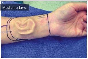 Хирургия: Ухо из кожи предплечья