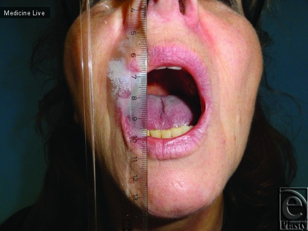 Интересный случай: Артропластика височно-нижнечелюстного сустава с помощью человеческой амниотической оболочки