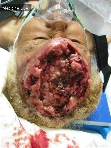 Интересный случай: Ангиосаркома и личинки мух