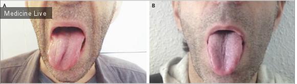 Интересный случай: Паралич подъязычного нерва во время менингококкового менингита