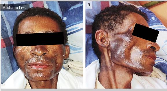 Интересный случай: Пигментация кожи пациента из-за увеличения уровня кортизола