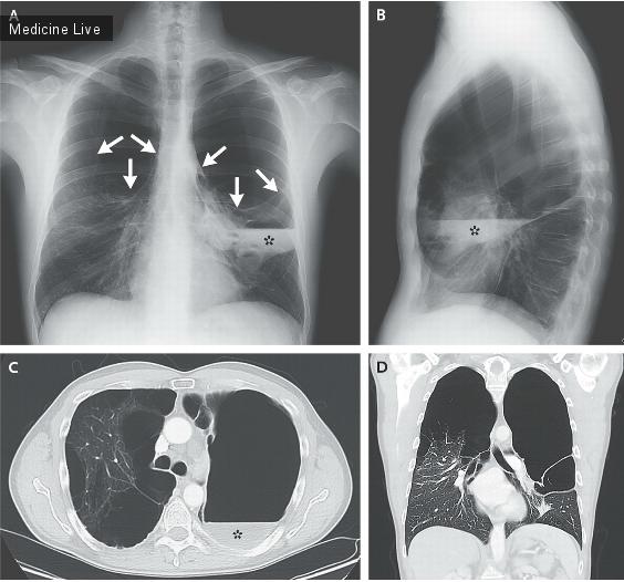 Интересный случай: Синдром исчезающих легких