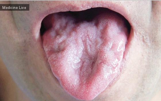 Интересный случай: Фасцикуляции языка вследствие амиотрофического бокового склероза