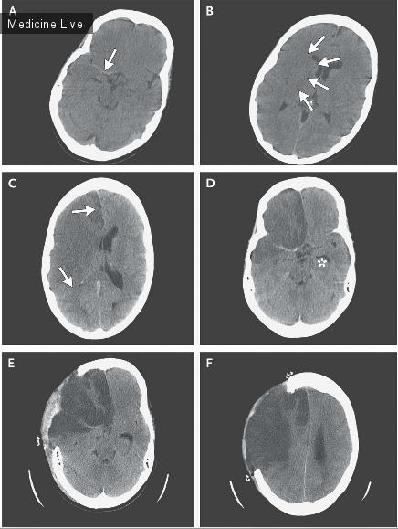 Интересный случай: Развитие инфаркта мозга