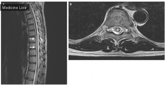 Интересный случай: Поверхностный брюшной рефлекс и его отсутсвие