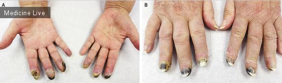Интересный случай: Некроз пальцев вследствие повышения вязкости крови