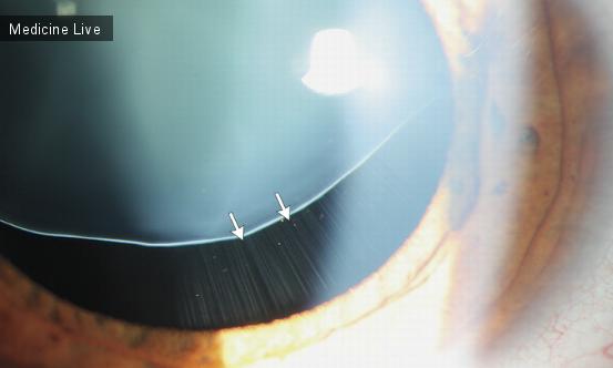 Интересный случай: Эктопия хрусталика при синдрома Марфана