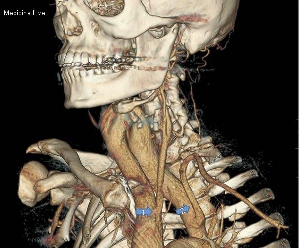 Интересный случай: Шейная дуга аорты