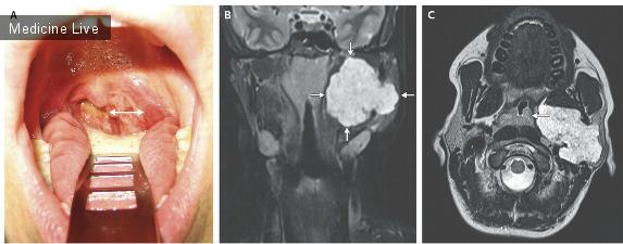 Заключение:эхографческая картина массивного опухолевого поражения левой околоушной слюнной железы с инфильтрацией мягких тканей,поражением л\узлов шеи слева и надключичного узла слева(низкодифференцированный рак?лимфома?).