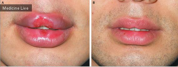 Интересный случай: Твердый шанкр на губах