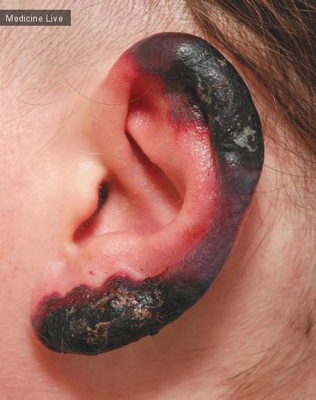 Интересный случай: Некроз кожи ассоциированный холодовыми агглютининами