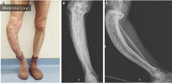 Интересный случай: Деформация большеберцовой кости вследствие болезни Паджета