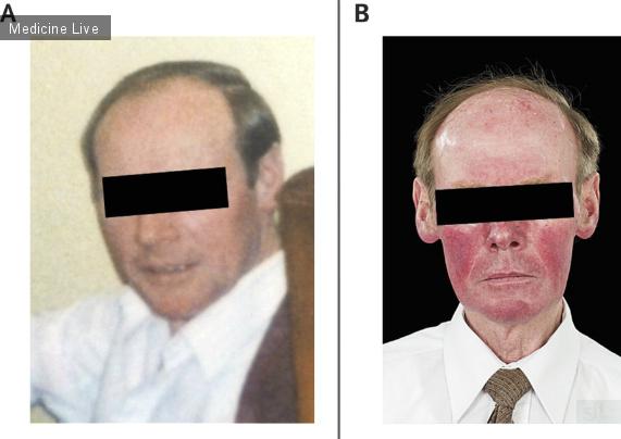 Интересный случай: Периодическое покраснение лица и диарея