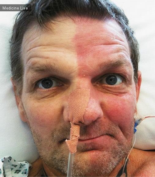 Интересный случай: Необычная гиперемия лица